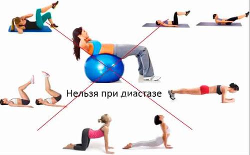 упражнения запрещенные при диастазе